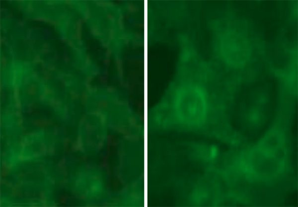 Green Fluorescent Calcitonin Receptor