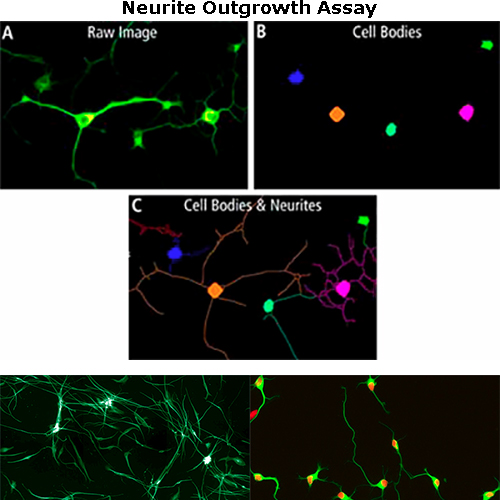 Neurite Outgrowth Assay